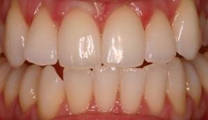 Po dantų balinimo